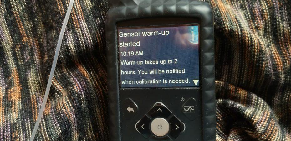 "Medtronic Minimed 670G Insulin Pump showing ""Sensor Warm Up Started"" message"