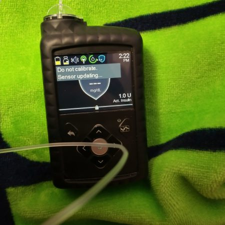 "Medtronic 670G Insulin Pump with ""Do not calibrate. Sensor Updating"" Message"