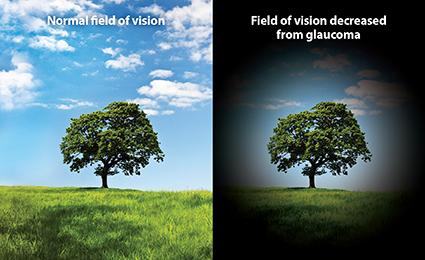 Glaucoma Treatment Pune