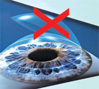 LASIK RISK AND COMPLICATIONS