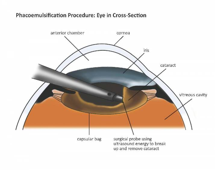 bladeless-cataract-dada-laser-eye