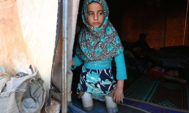 Refugee Girl Using Tin Cans as Legs Gets Real Prosthetics, Thanks to Kind Doctor
