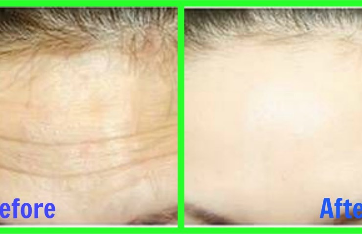 HOW TO REMOVE WRINKLES IN 3 DAYS 1
