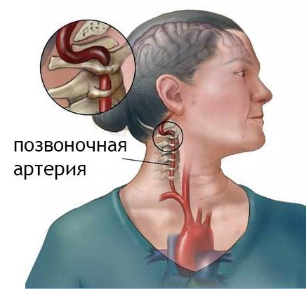 gyakorlatok a nyak számára magas vérnyomás esetén