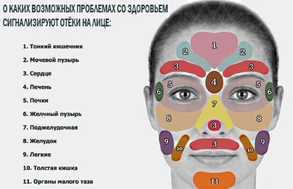 hinchazón facial periódica