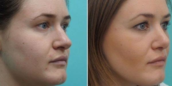 modalități de îndepărtare a grăsimilor faciale