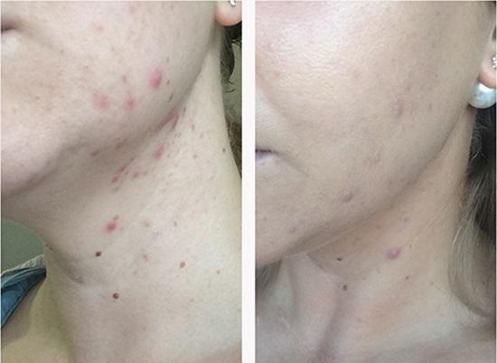 Азелаиновая кислота растворимость. Применение азелаиновой кислоты в  косметологии