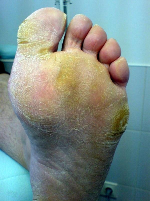 velký péro blaque orgie nohou