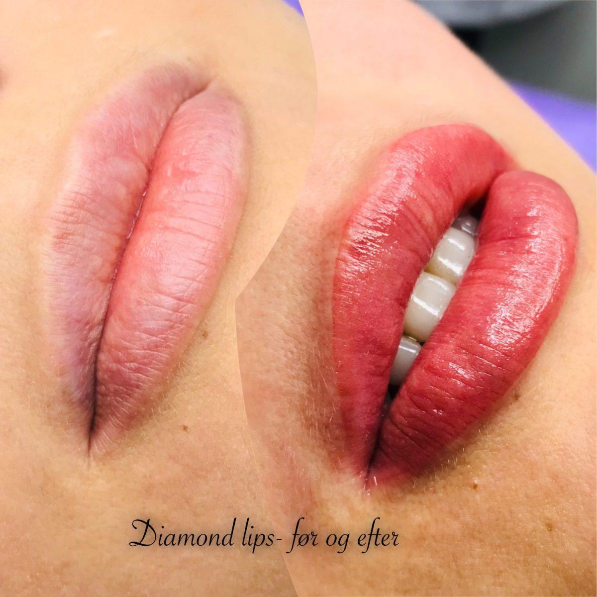 volume lips pmu