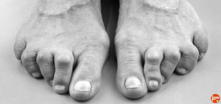 rock-climber-toe-deformity-bunions