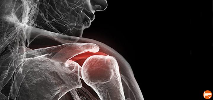 inflammation epaule conflit sous acromial escalade bloc
