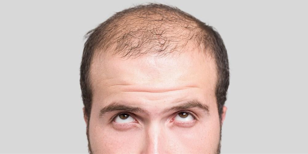 3 razloga da koristite Reiši ekstrakt za rast kose
