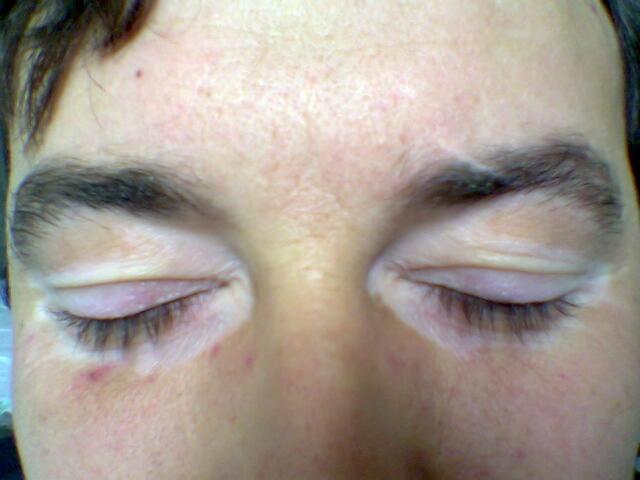 File:Eyelid vitiligo 06.jpg