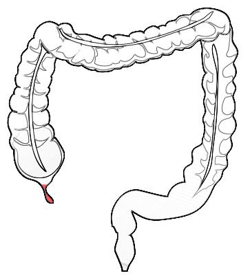 File:Anatomy-human-appendix-in-colon.png