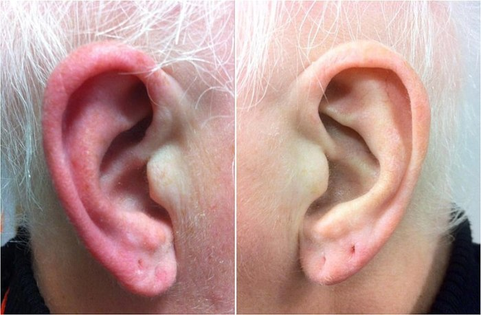 File:Red ear syndrome 2.jpg
