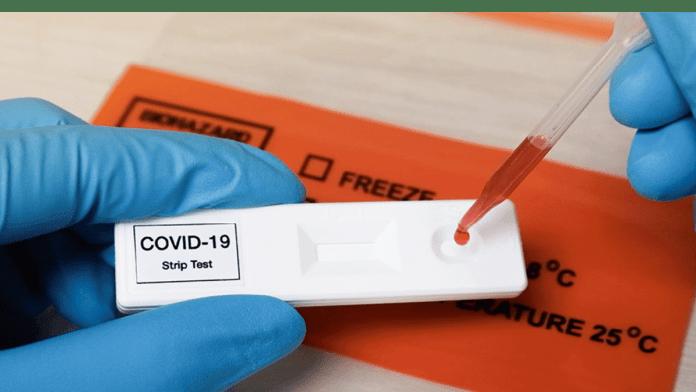 COVID-19 Antigen Rapid Diagnostic Tests