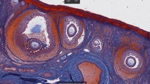 Ovarian histology.