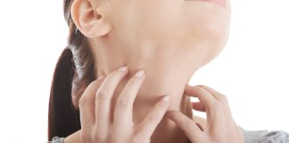 eczema-cou-une