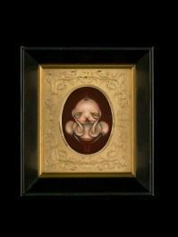 Miso -Infant with Cornu Cutaneum