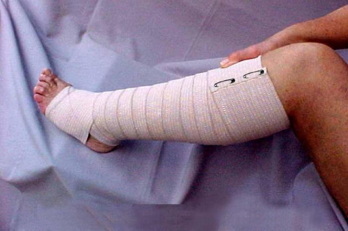 Detienen a un señor de Socuéllamos por arrancarle la pierna a sus esposa tras decirle que quería dormir a pierna suelta