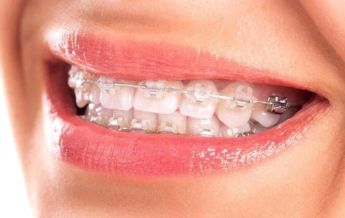 Una feminista de Las Pedroñeras denuncia a su dentista por decirle que le tenía que poner el aparato en la boca