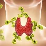 Depresion en pacientes con alteración en la tiroides