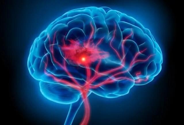 cerebro representando la teoría inflamatoria de la depresión