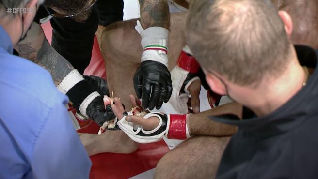 Luchador de MMA pierde un dedo en pleno combate