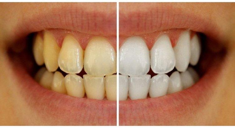 Xanthodont Yellow Teeth