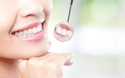 Cosmetic Dentistry in Pensacola, FL