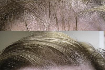 Landmark Hair Loss Clinic - Success Stories
