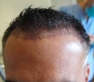 Hair loss solution: Hair Transplants, Will it work for me?