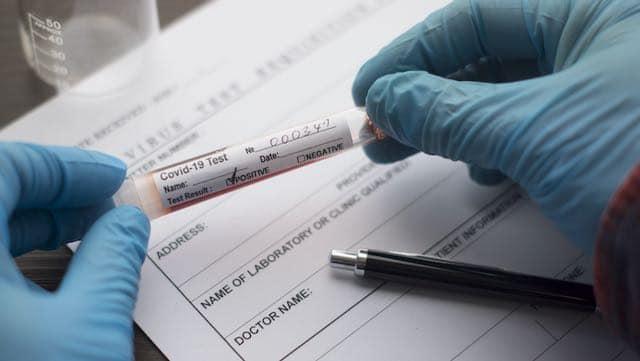 No se sabe la etnia de más de 41,000 casos de COVID-19