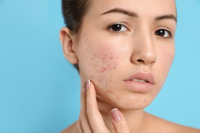 Maskné, acné causado por el uso de mascarillas