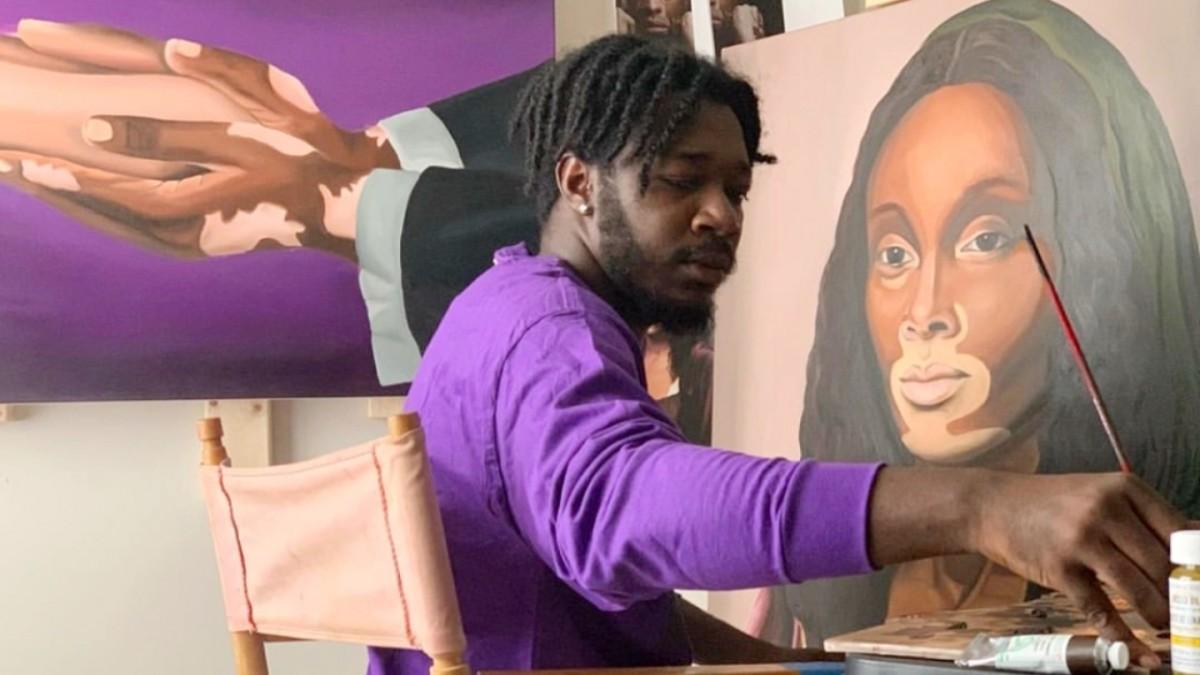 Exposición de arte sobre el vitiligo llega a Raleigh