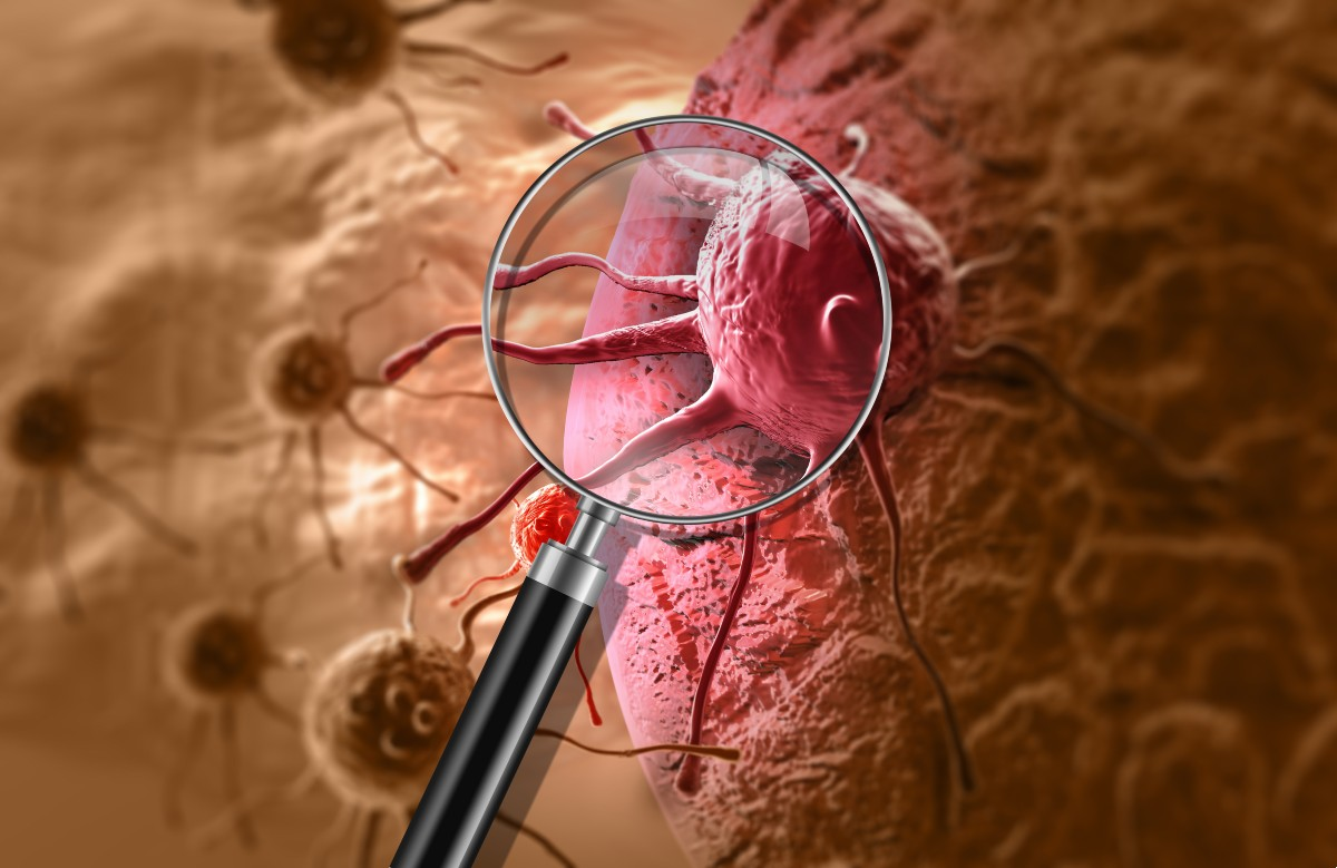 hay-esperanza-droga-radioactiva-rastrea-y-extermina-el-cancer