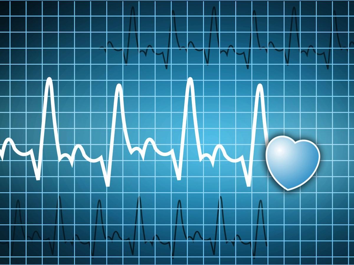 Ritmo cardiaco ¿Por qué es importante saber el suyo?