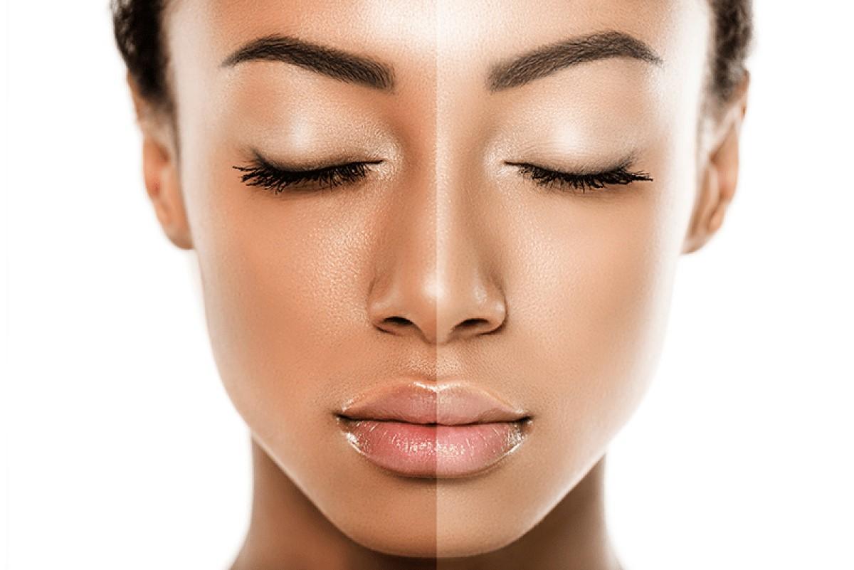 tratamientos-aclarar-piel