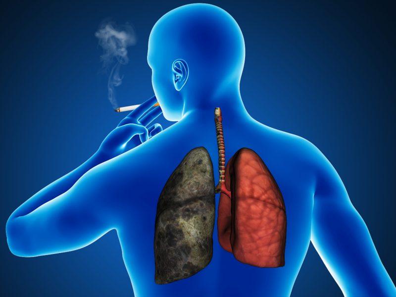 El consumo de cigarrillo puede activar el gen capaz de generar esta enfermedad articular. © Adobe Stock.