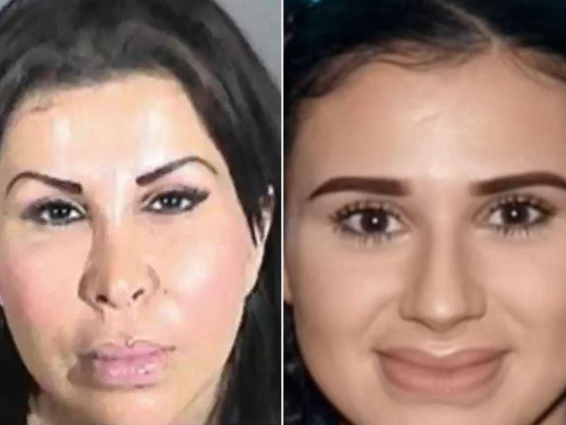 madre hija california cirugía