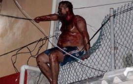 """Reconoce Policía de Cancún que minimizó ataque a """"ruso"""""""