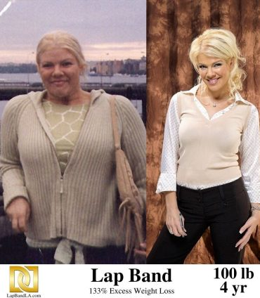 Tanya's Before and After Photo After 4 years using the Lap Band