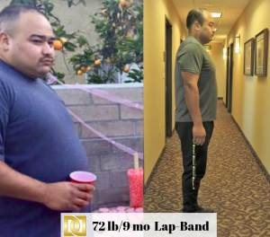 Abe-M-Bariatric-Surgery-Before-and-After-Results-With-Lap-Band-At-Davtyan-Medical-Weight-Loss-And-Wellness-LA