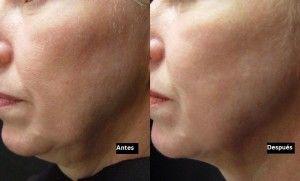 Fotos antes y despues - 9