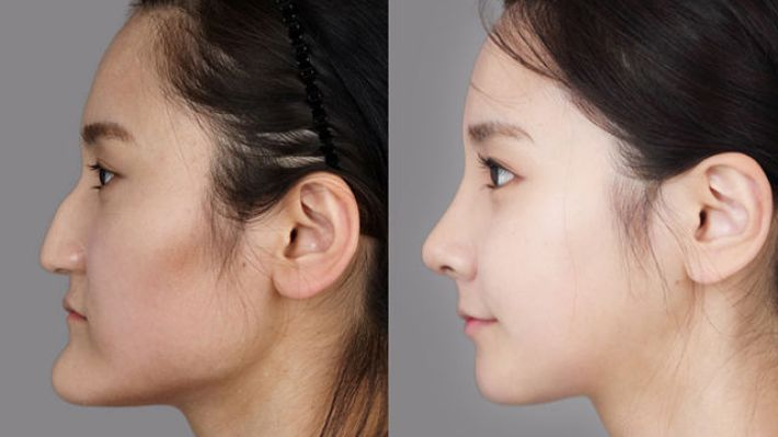 korean plastic surgery before after - plastic surgery