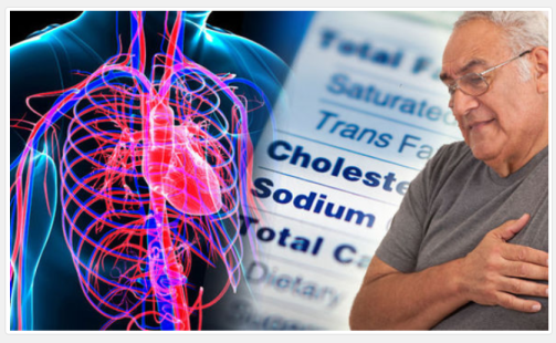 High Cholesterol and its effects