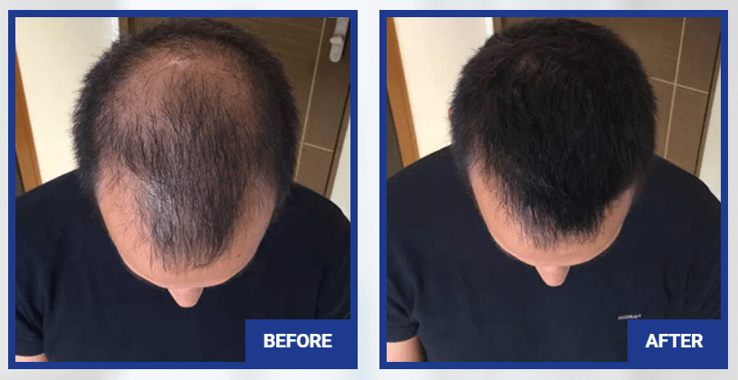 Folisin Before After