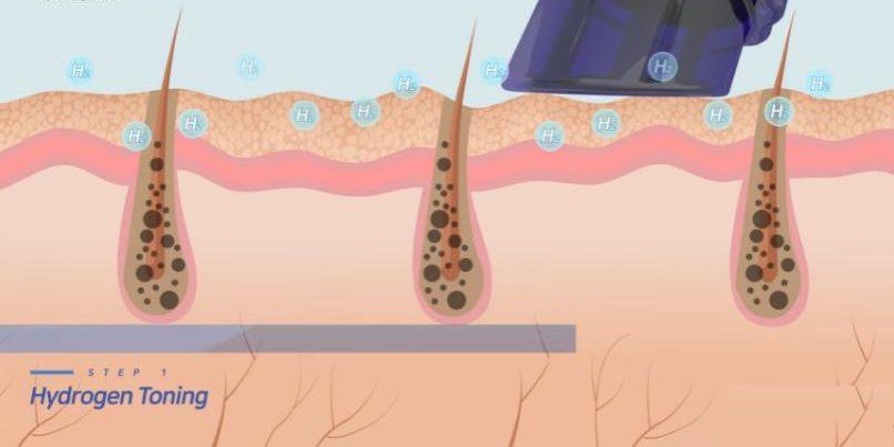 aquasureh2-kielce-kosmetolog-wodorowe-oczyszczanie