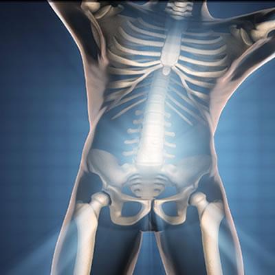 protege los huesos