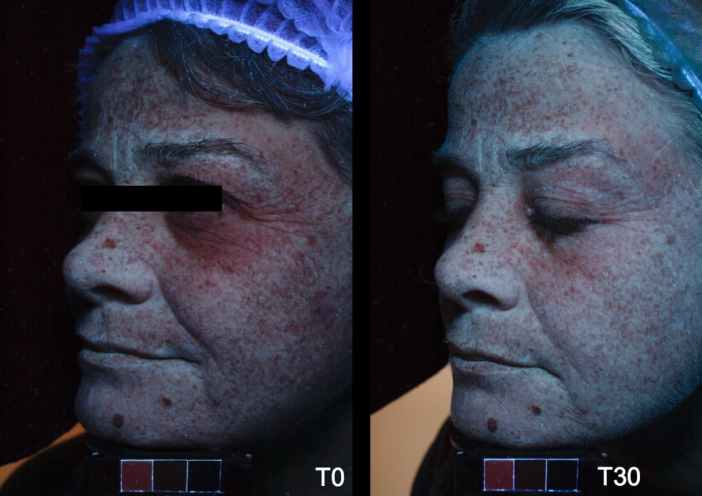 Lasera Universkin before after 3